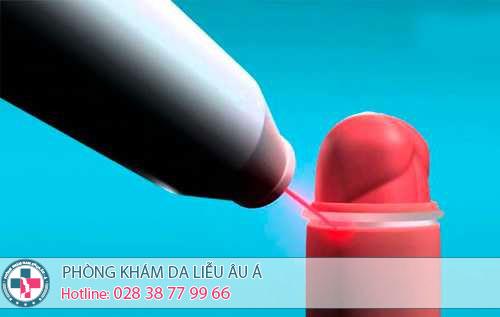 Phương pháp cắt bao quy đầu bằng laser tại Đa khoa Âu Á