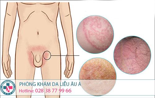 Phương pháp trị nấm da vùng kín nam