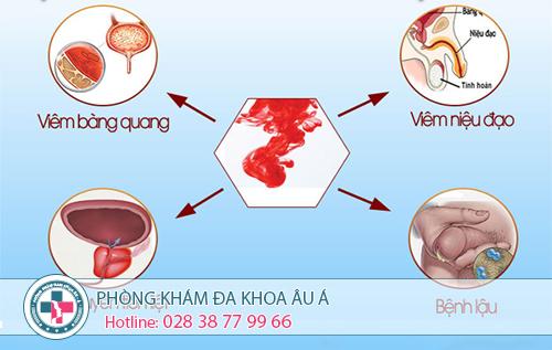 Tiểu ra máu ở nam giới nên đi khám ở đâu?